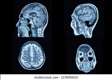 Image show CT brain and human body