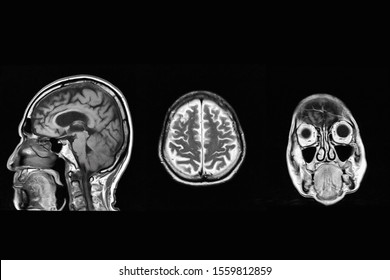 Image show CT brain and skull
