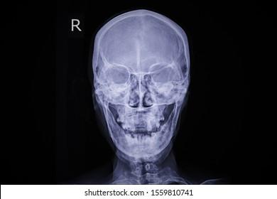 Image show human skull and xray skull