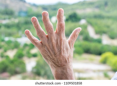 Image shows the hand of an old man who suffers of arthritis.