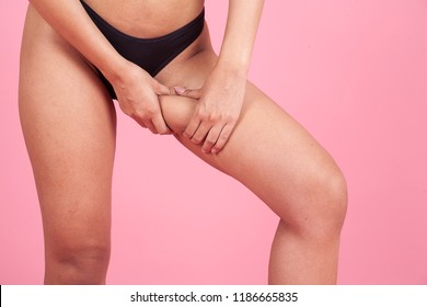 image woman checking or showing cellulite area. female pinches her thigh to control cellulite. Plastic surgery,healthy nutrition,fat loss,liposuction,lifestyle sport and cellulite removal concept