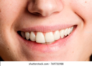 image of a woman mouth smiling
