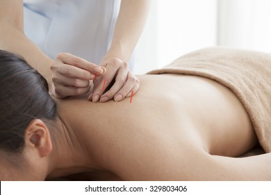 Image of woman receiving acupuncture treatment in beauty spa.