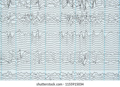 Imaging of brain waves from electroencephalography or EEG in human