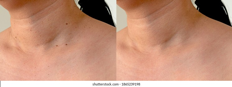Imperfect Skin texture retouched, skin tags removal before and after treatment concept - Shutterstock ID 1865239198