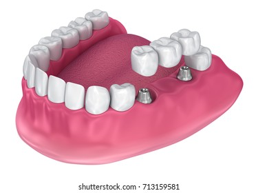 implant supported fixed bridge. Medically accurate 3D illustration