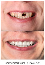 Incisive man's tooth restoration before and after treatment