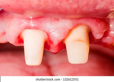 Incisive tooth in course of treatment