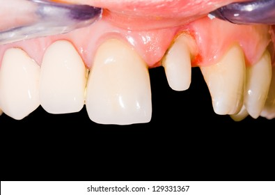 Incisive tooth restoration with ceramic crown