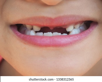 Incisor broken upper teeth and diastemas in the little child girl using for dental concept.