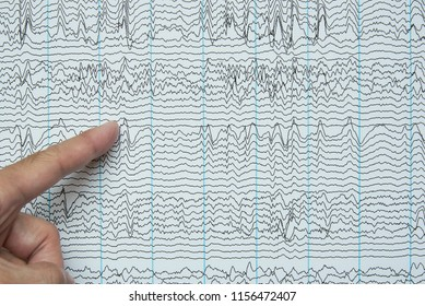 Index finger pointing at imaging of human brain waves from electroencephalography or EEG