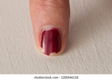 Index finger with ruined red nails.