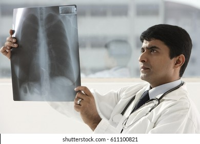indian doctor holding up x-ray scan
