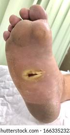Eine infizierte chronische Wunde am rechten Fuß mit fünfter metatarsaler Knochenfraktur.