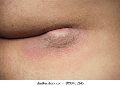 Infected pilonidal sinus is found at a cleft between buttock.