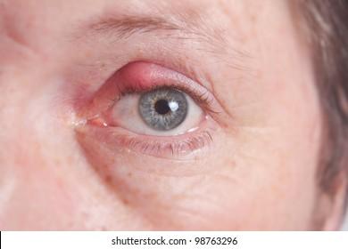 Infected purulent eye