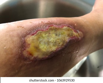 Infected wound diabetic foot with wound burn from hot water. Medical and healthcare concept.