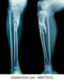 infection tibia bone with loss bone density, child leg metastasis to bone