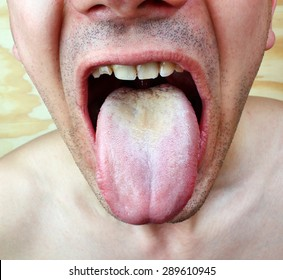 Infection tongue disease candida albicans