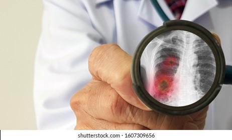 Infectious doctor exam and screening new corona virus infection or COVID(novel Coronavirus 2019 disease,COVID-19,nCoV,SARS-Cov-2)that pandemic outbreak as respiratory syndrome,viral pneumonia symptom