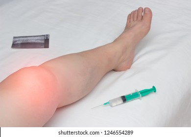 The inflamed leg of a woman with an affected knee joint from arthrosis and arthritis lies next to a syringe with Gilauri acid and a Honndroprotector