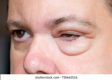 Inflammation of the eyelid. Swelling of the eye after insect bite. A man with sick eyes. Sensitive reaction to an experimental wrinkle cream.
