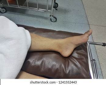Inflammation of Gout at area of bone erosion of foot with male patient
