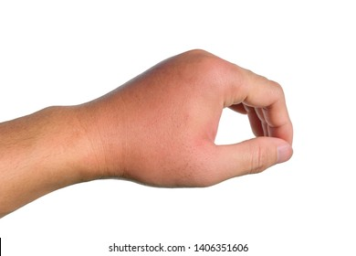 Inflammation, swelling, redness of the hand shows infection. Insect bites. Cellulitis at left hand isolated on white background.