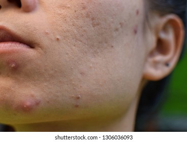 Inflammatory acne, large pores and wrinkles on the face of women
