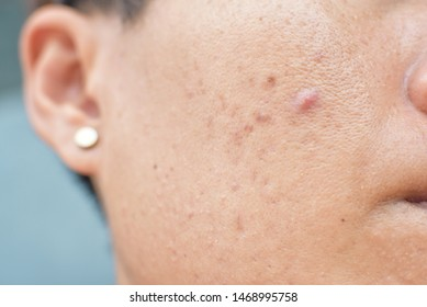 Inflammatory acne on the face and dark spots