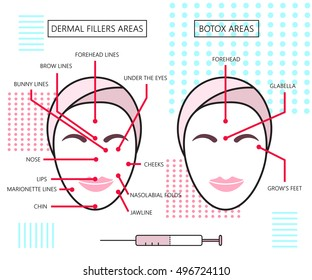 Infograthic poster about dermal fillers and botox ares. Injections. Cosmetology. Beauty.