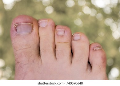 The ingrown nail. fungus on the nail. Nail defects. ugly toenails. onychomycosis.