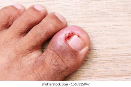 Ingrown nails with pus on a wooden table