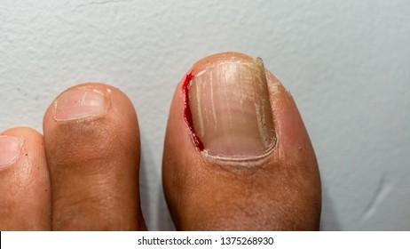 ingrown toenail causes toe to bleed.