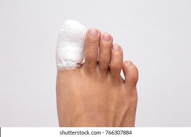 Ingrown Toenail Images, Stock Photos & Vectors | Shutterstock