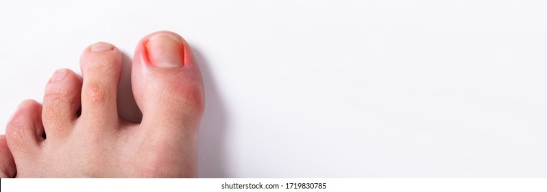 Ingrown Toenail. Infected And Sore Nail Problem