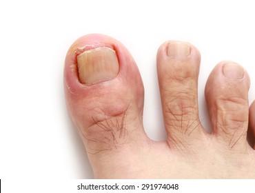 Ingrown toenail isolated on white background