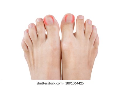 Ingrown toenails on a woman's foot, isolated on white background, pain in the big toe closeup