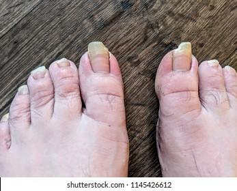 Ingrown toenails / overgrown toenails