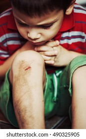 Injured boy looks at his scraped knee
