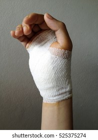 injured hand after operation