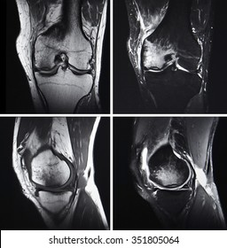 injured knee, MRI