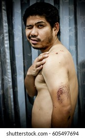 Injured man And have abrasions