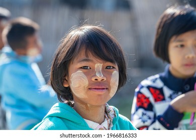Inle Lake, Myanmar, Burma - Jan 13, 2016 : young girl from Myanmar with Tanaka on her face in yard near local school, Burma. Tanaka is a yellowish-white cosmetic paste made from crushed bark