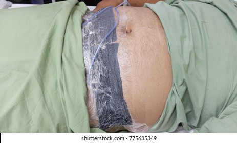 Innovative Vacuum dressing for huge abdominal wound.