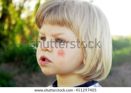 Insect Mosquito Bite On Baby Face Stock Photo Edit Now 451297405