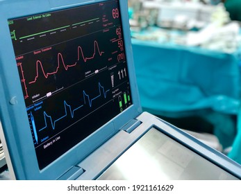 Intra aortic balloon pump (IABP) machine in operating room, focus on digital display