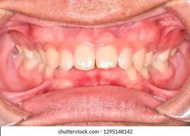 Intra-oral deep bite teeth and gum in the smile mouth oral care. No dental cavity  or caries. Bacteria, dental plaque is the cause of gingivitis and tooth decayed which need to meet dentist at clinic
