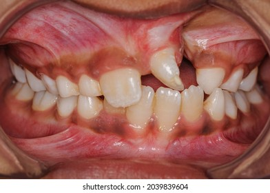Intra-oral front retracted view of dentition of a child with unilateral cleft alveolus and palate.
