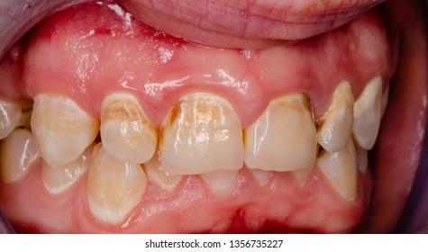 intraoral picture of decay and caries on frontal teeth, white spot lesions